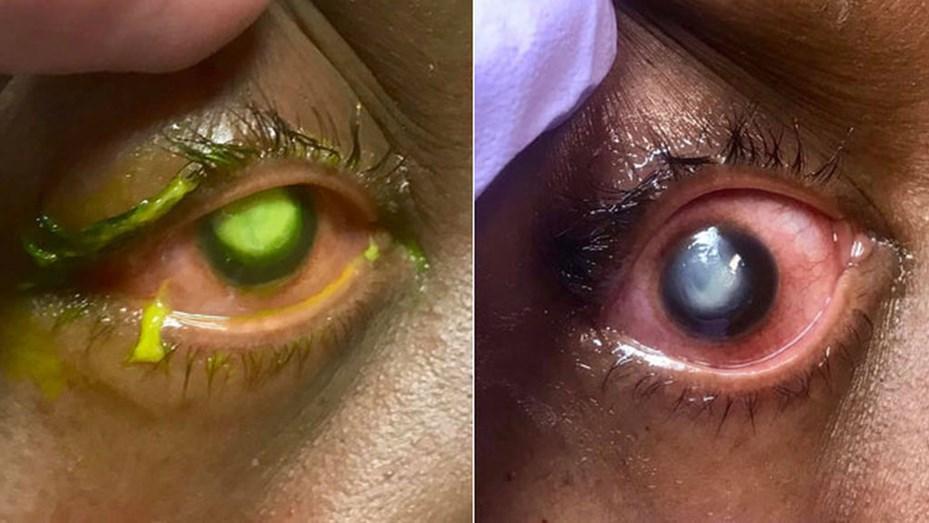 9796053ca0 Fotos: así pueden quedar los ojos si la persona duerme con los lentes de  contacto puestos