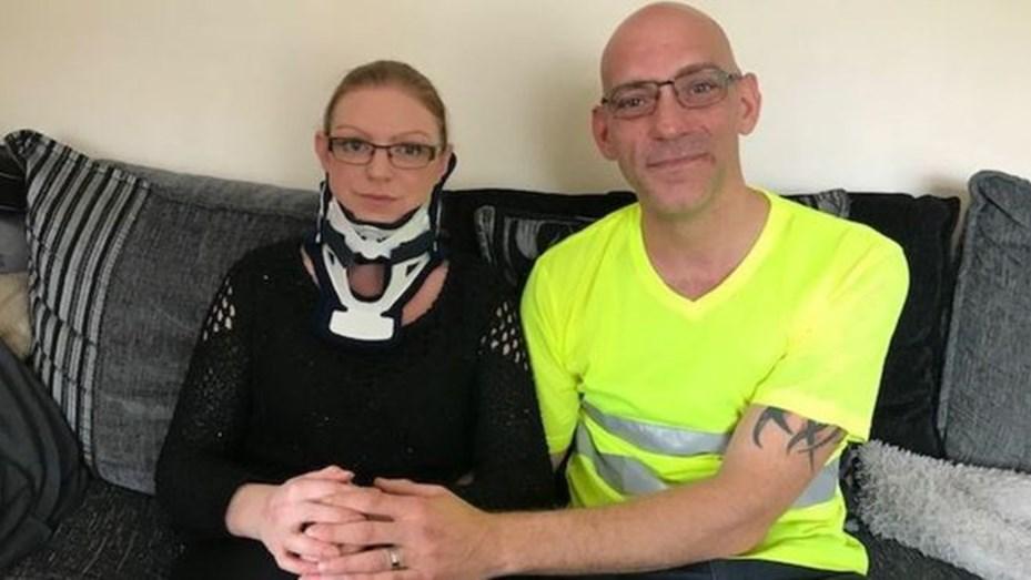 Rachel Pighillis de 33 años padece una rara enfermedad y no puede girar la cabeza hacia la izquierda.
