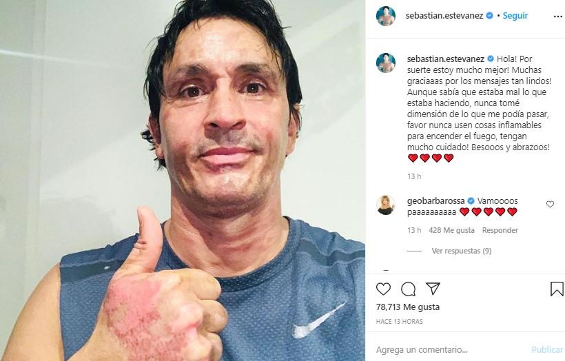 Sebastián Estevanez mostró cómo quedó su rostro tras su terrible accidente